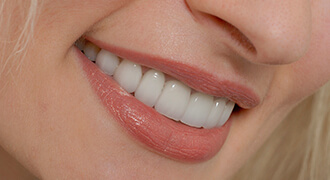 Smiling teeth with dental sealants